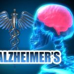 Doctor Discovers Natural Alzheimer Treatment…