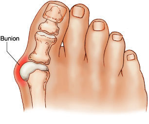 What Is Bunion?