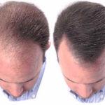 Herbs for Hair Loss