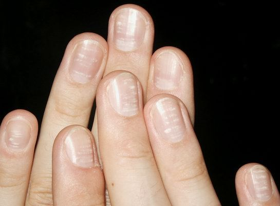 8 Health Warnings Your Fingernails Are Sending - Be Well Buzz