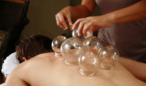 What Is Cupping?