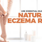Cure Eczema With These Essential Oils