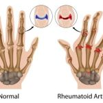 6 Holistic Ways To Treat Rheumatoid Arthritis