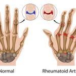 6 Holistic Ways To Treat Rheumatoid Arthritis