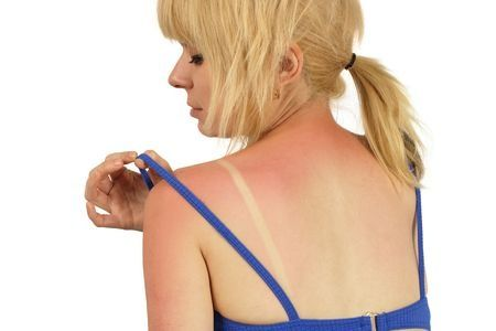 6 Natural Sunburn Remedies