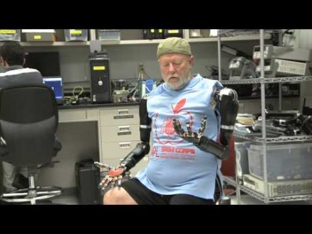 The Bionic Arm That Changed This Man's Life