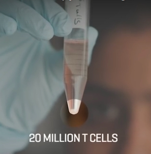 A single treatment of a relatively small number of the re-engineered T cells only takes about 30 minutes, and within weeks, the patient goes into a complete remission. (credit: Fred Hutchinson Cancer Research Center)
