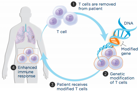 Adoptive T-cell transfer aims to boost a patient's immune cells' ability to recognize and attack cancer cells. (1) T cells are extracted from the patient's blood, (2) genetically engineered to produce a molecule that recognizes cancer cells and grown in the laboratory, and (3) infused back into the patient to (4) improve immune response. (credit: LUNGevity Foundation)