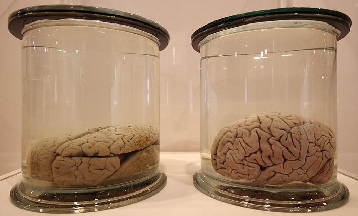 Brain on sugar