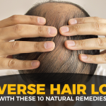 10 Natural Home Remedies To Reverse Hair Loss