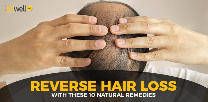 10 Natural Ways to Cure Hair Loss at Home