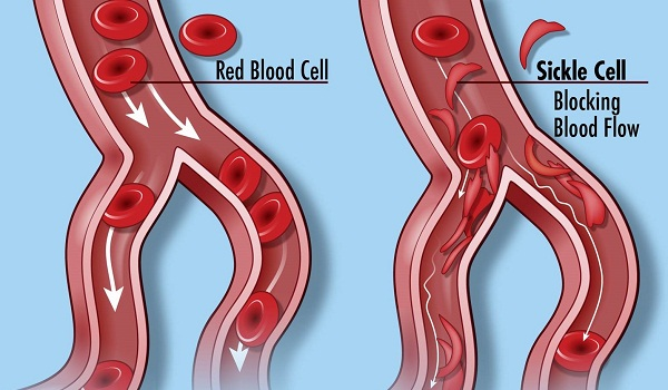 People with sickle cell anemia have red blood cells that are shaped like sickles, or crescent moons.